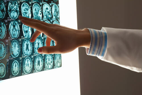 Traumatic Brain Injury (TBI) is a Family Affair: Helping Families Adapt to Changing Roles